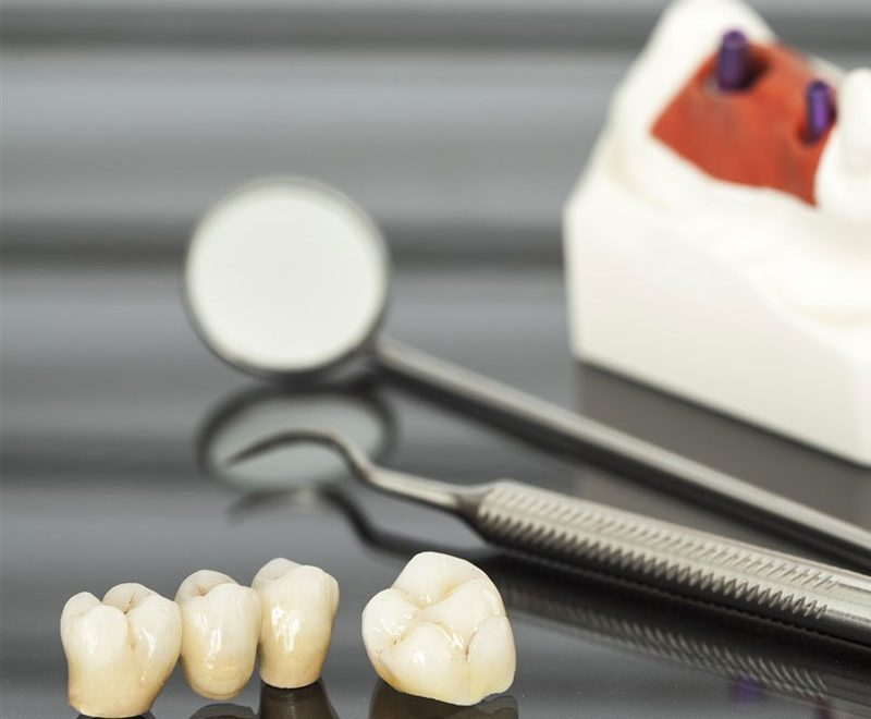 dental crowns in burnaby