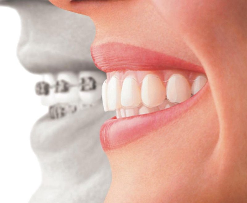 dentist invisalign burnaby