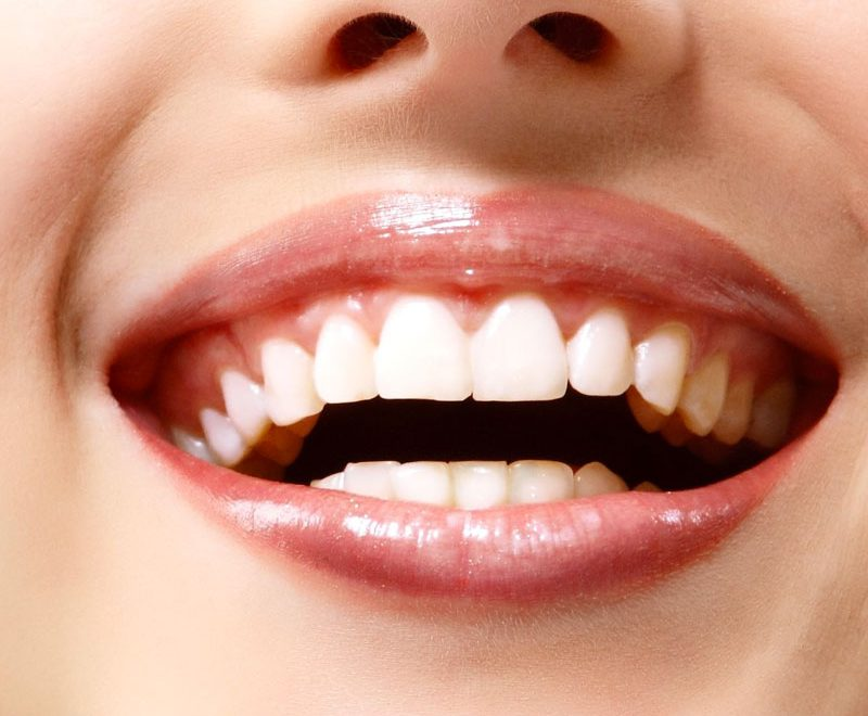 burnaby teeth whitening