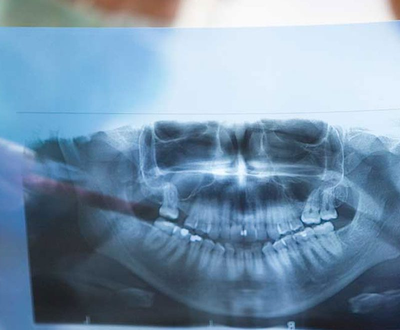 burnaby dental xrays