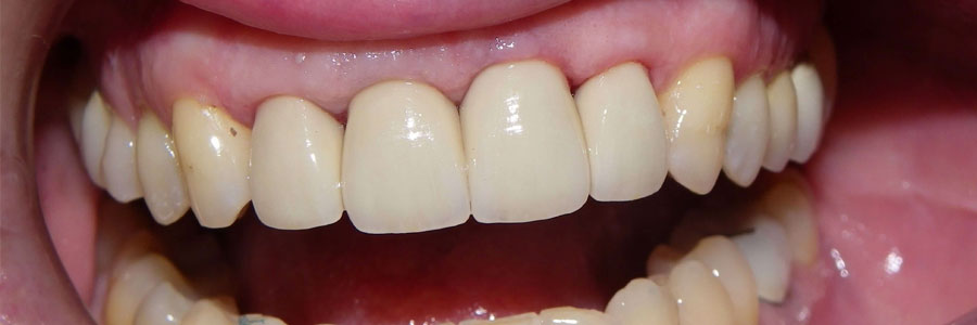 burnaby bad dental crowns