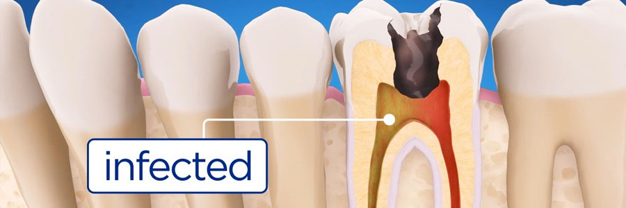 burnaby dental root canal