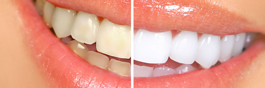 teeth whitening burnaby dentist