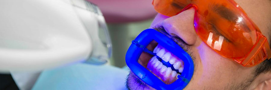 burnaby dentist teeth whitening