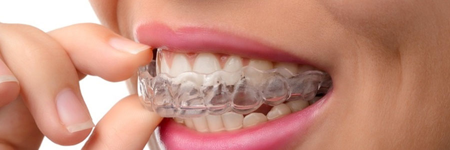 invisalign by burnaby dentist