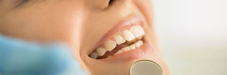 burnaby oral hygiene dentist