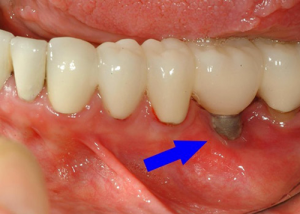 burnaby dental implant problem