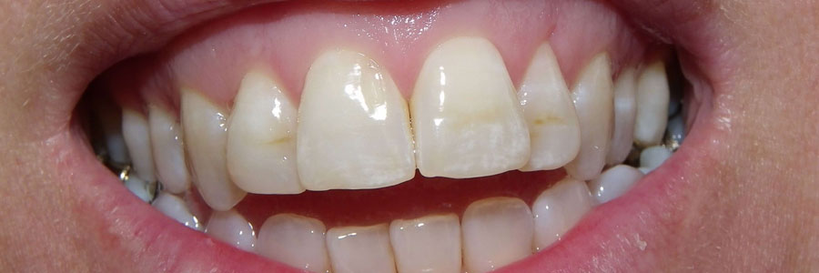 burnaby stained teeth